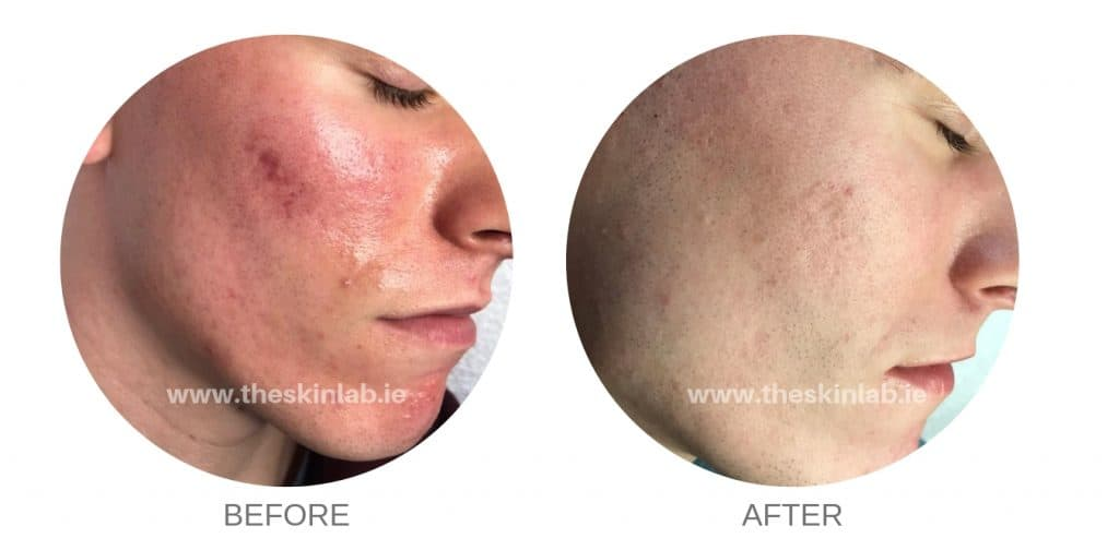 acne scars kerry